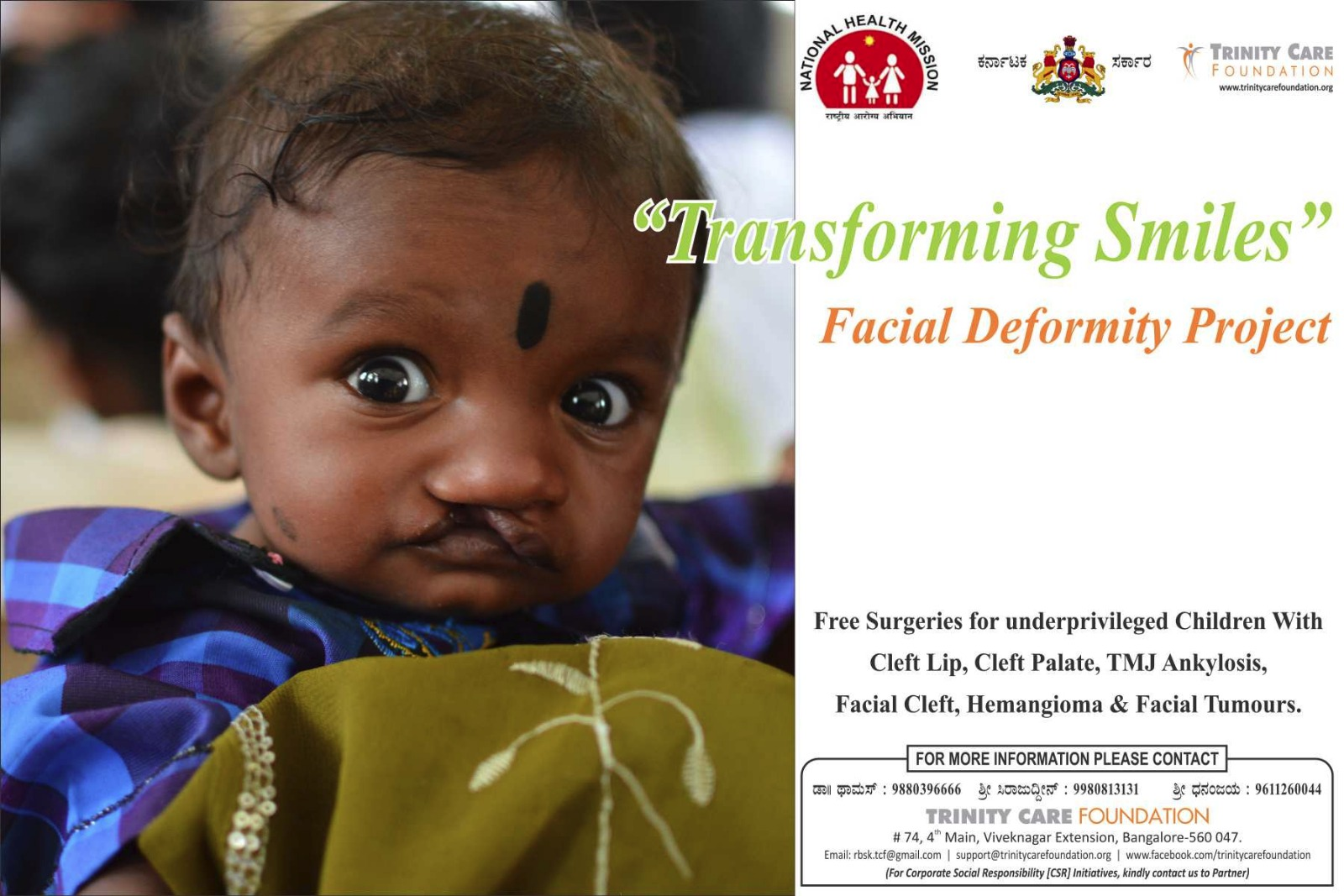 Free Cleft lip surgery india